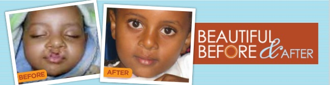 You're invited to Beautiful Before & After: A celebration of children with cleft lip and palate