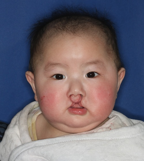 Beyond a Single Surgery: The power of comprehensive cleft care