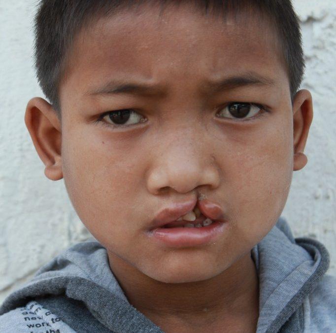 Beyond the Initial Surgery in Thailand: Meet Su, Cin & Moen