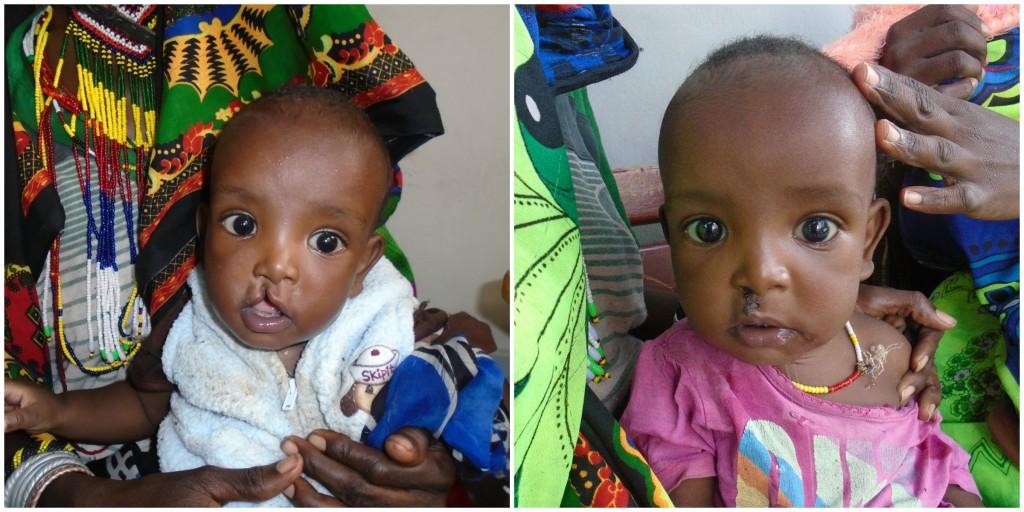 Lives Transformed: Meet Chala