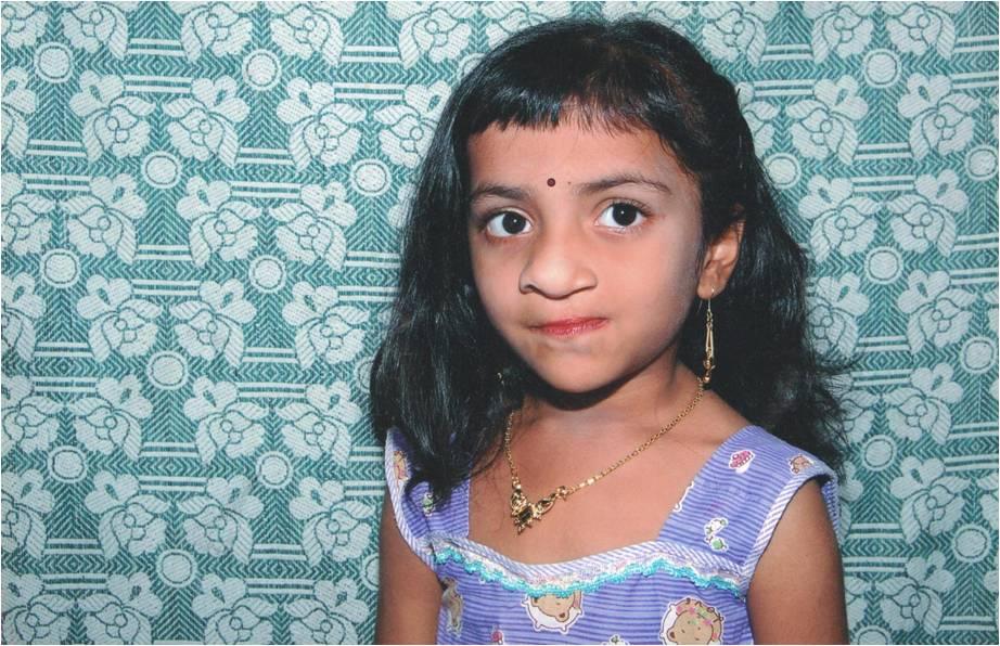 Sandhiya's Cleft Story