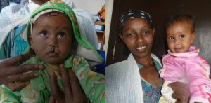 Transforming Faces - What is Cleft Care