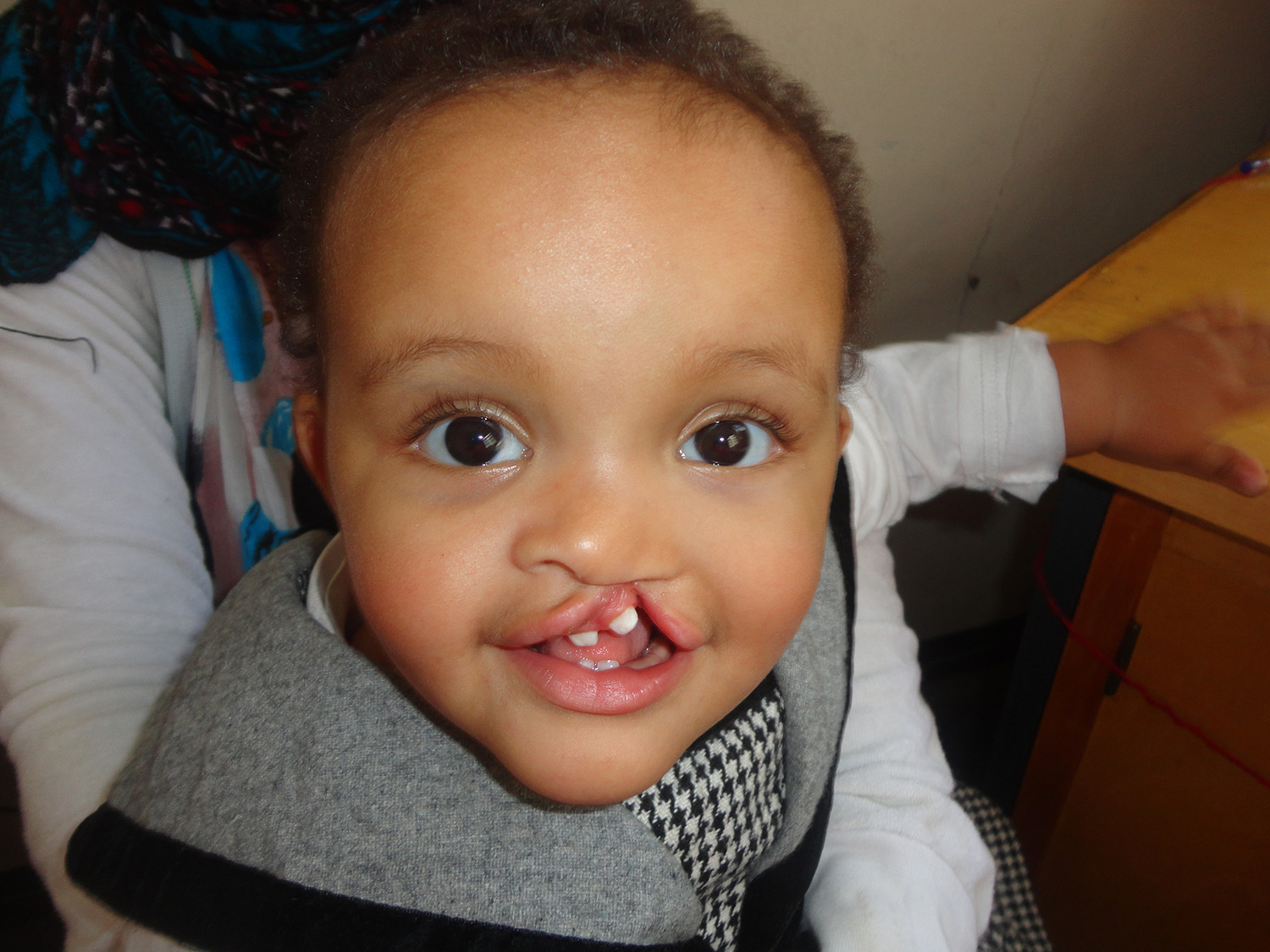 Cleft lip and palate Ethiopia