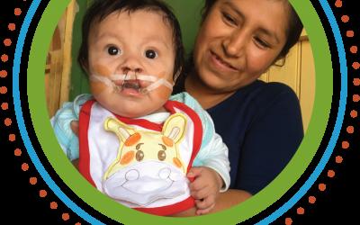 Hope for Baby Joshua