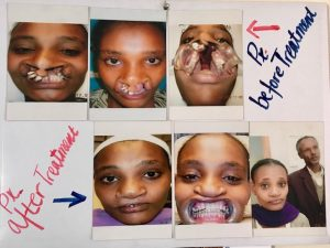 Cleft lip and palate Transforming Faces