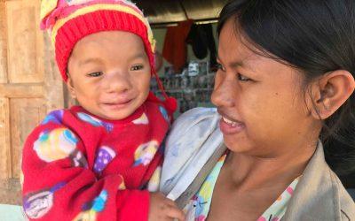 Comprehensive Cleft Care for Newborns in Myanmar