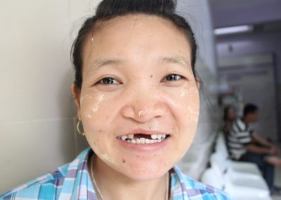 Thailand Agnes Transforming Faces